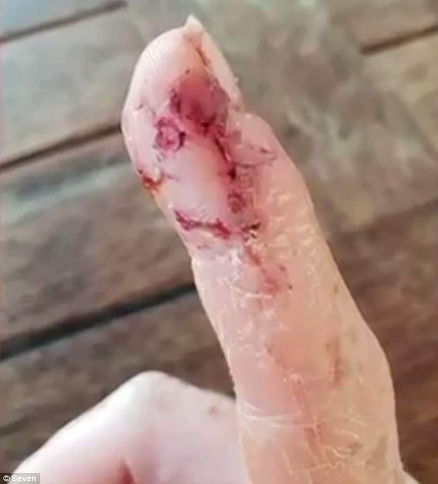 Ms Brunning said all she could think was that her finger was gone and she couldn't even bring herself to check, thinking if she saw her finger severed she would 'go into shock'